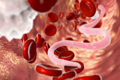 Parasite in human blood. Parasitic worms in blood, 3D illustration. Can be used to illustrate Ascaris, Toxocara, microfilaria and other worms Stock Images