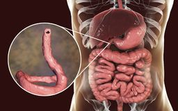 Parasitic hookworm Ancylosoma duodenale in human duodenum. Ancylostomiasis. Human intestine and close-up view of a parasitic hookworm Ancylosoma duodenale, 3D Royalty Free Stock Images
