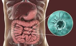Parasitic infection of intestine. 3D illustration showing close-up view of an abstract parasite and anatomy of human digestive system Stock Photography
