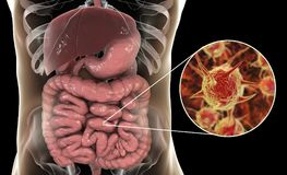 Parasitic infection of intestine. 3D illustration showing close-up view of an abstract parasite and anatomy of human digestive system Stock Photo