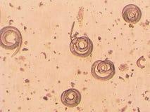 Parasitiska Trichinellaspiralis - avmaska mikroskopet Arkivbild