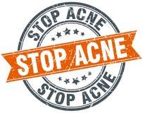 Pare el sello del acné Stock de ilustración