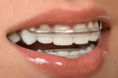 Parentesi graffe dentali Fotografia Stock