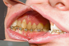 Parentesi graffe dentali sui denti - trattamento ortodontico Fotografia Stock