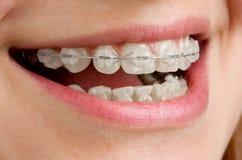Parentesi graffe sui denti fotografia stock