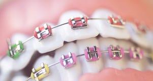 Parenthèses dentaires cosmétiques en métal images stock