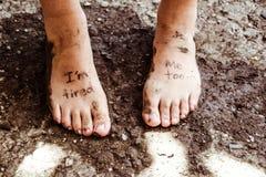 Pares de pies cansados Fotografía de archivo