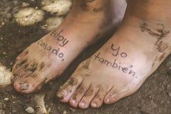 Pares de pies cansados Imagen de archivo