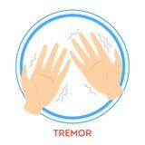 Parkinson disease symptoms. A tremor. Shaking hand