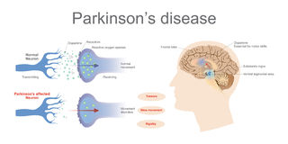 Parkinson`s disease. Dopamine levels in a normal and a Parkinson`s Affected neuron. Health care education infographic. Vector design vector illustration