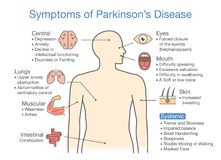 Parkinson`s disease symptoms and signs. Illustration about medical diagram stock illustration