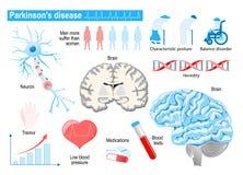 Parkinson-` s Krankheit Ältere Menschen Krankheiten, Störungen und oth stock abbildung