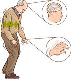 Parkinson. A vector illustration of Old man with Parkinson symptoms difficult walking royalty free illustration
