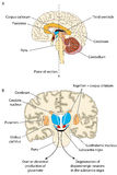 Parkinsonian brain. The brain in two places of section, showing the areas involved in the development of Parkinson's disease stock illustration