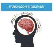 Parkinsons disease cartoon. Icon vector illustration graphic design vector illustration