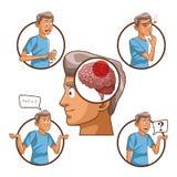 Parkinsons disease cartoon. Icon vector illustration graphic design royalty free illustration