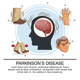 Parkinsons disease infographic royalty free illustration