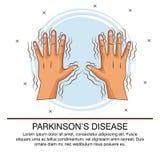 Parkinsons disease infographic. Icon vector illustration graphic design stock illustration
