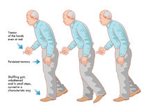 Parkinsons-Krankheit stock abbildung
