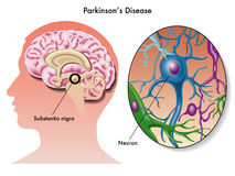 Parkinsons sjukdom stock illustrationer