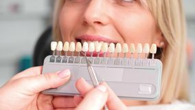 Part of dentist choosing color teeth from palette. During dental checkup stock video footage