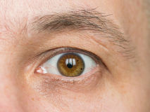 Part of the face of a young man with a scar on the eyebrow. royalty free stock image