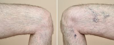 Leg of a man with varicose veins and capillaries before and after medical treatment. Part of a leg & x28;thigh& x29; of the man with varicose veins and royalty free stock photography