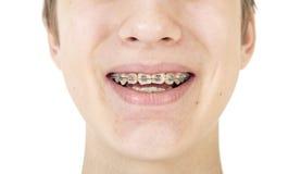 Parte de la cara con los apoyos ortodónticos Imagen de archivo