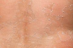 Parte de peladura detrás Fotos de archivo libres de regalías