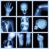 Parte dei raggi x della raccolta del corpo del bambino Fotografia Stock Libera da Diritti