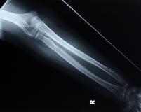 Parte dianteira do raio X/antebraço Foto de Stock Royalty Free