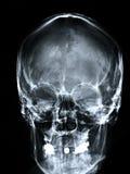 Parte dianteira do raio X/face Fotografia de Stock