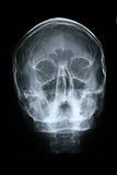 Parte dianteira do raio X/face Fotos de Stock Royalty Free