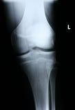 Parte dianteira do raio X/joelho Fotografia de Stock Royalty Free