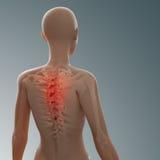 Parte posterior y lesión de la espina dorsal Fotografía de archivo