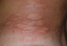 Parte posteriore e lati della pelle di allergia Reazioni allergiche sulla pelle sotto forma di gonfiamento e di rossore Fotografia Stock Libera da Diritti