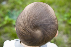Parte superiore della testa del bambino Immagini Stock