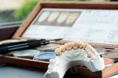 Parte superiore dentale Fotografia Stock