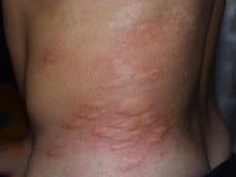 Parte traseira e lados da pele da alergia Reações alérgicas na pele sob a forma do inchamento e da vermelhidão fotos de stock