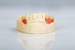 A partial denture mounted on a plaster study model Stock Image