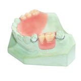 Partial denture production on white background Royalty Free Stock Photography