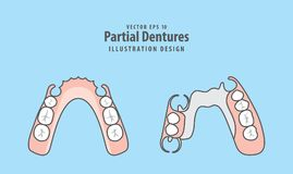 Partial Dentures illustration vector on blue background. Dental Royalty Free Stock Photography