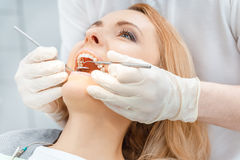 Partial view of beautiful blonde woman at dental check up looking up Stock Image