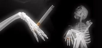 Partido que fuma esquelético Imagen de archivo libre de regalías