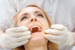 Partisk sikt av den blonda kvinnan på den tand- kontrollen upp fotografering för bildbyråer