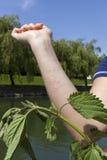 Parzącej pokrzywy alergiczna reakcja Obraz Stock