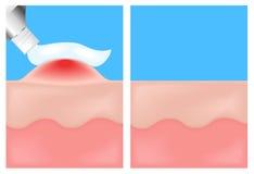 Pas een geneeskunde op toe versterken huid, huidziekten Stock Foto