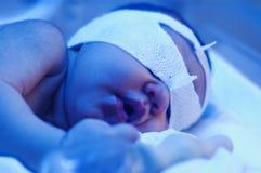 Pasgeboren baby onder ultraviolet licht Royalty-vrije Stock Afbeeldingen