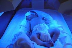 Pasgeboren geelzucht Royalty-vrije Stock Afbeelding