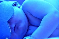 Pasgeboren geelzucht Royalty-vrije Stock Foto's